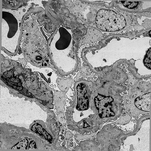 TEM image of Kidney Tissue.jpg
